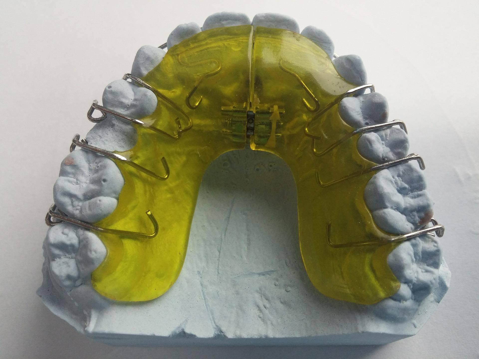 Ортодонтическая пластинка для детей. классификация и виды, цены