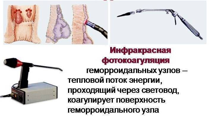 Фотокоагуляция геморроидальных узлов