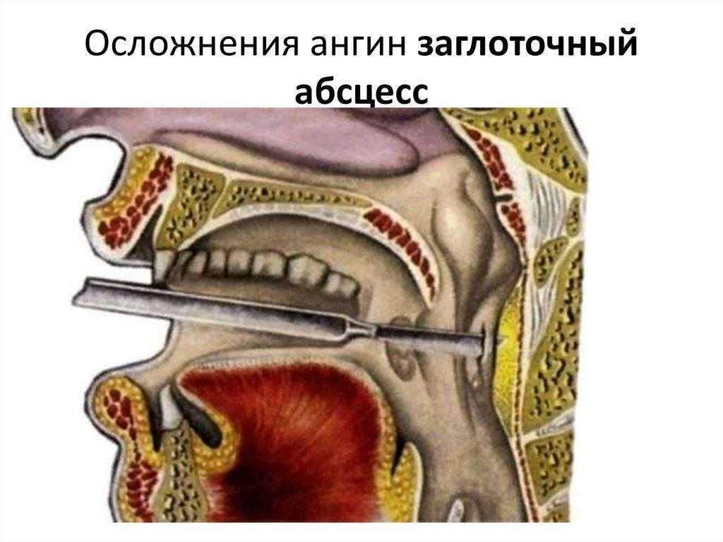 Гной на миндалинах: как возникает, причины и заболевания, проявления, лечение и профилактика