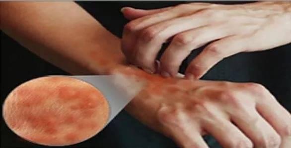 Зуд тела при заболевании печени. заболевания печени, сопровождающиеся зудом кожи тела