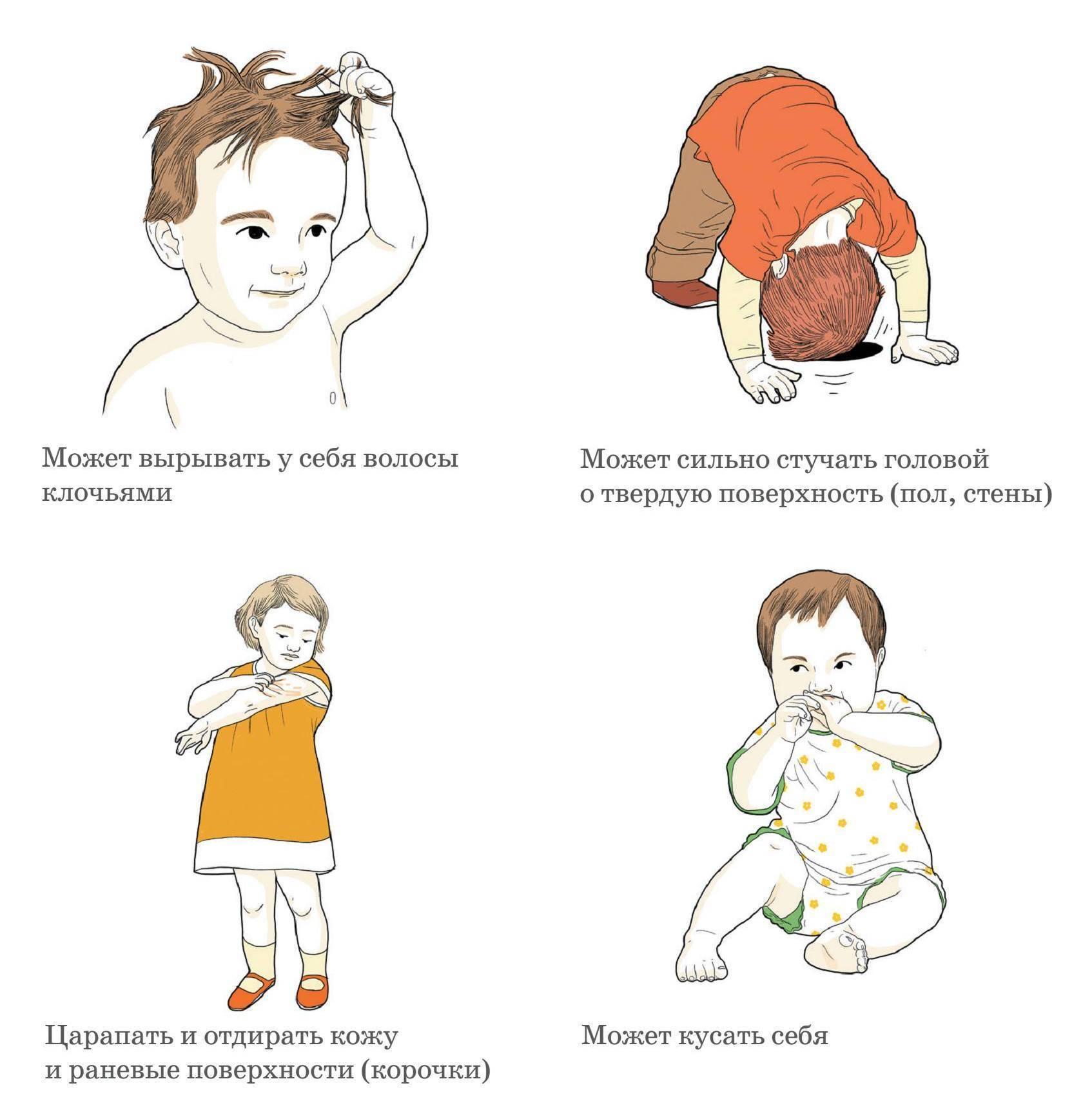 Легкая степень аутизма у детей