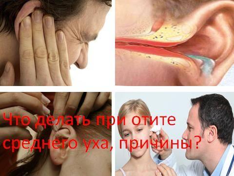Заложило ухо после простуды: что делать, как лечить в домашних условиях