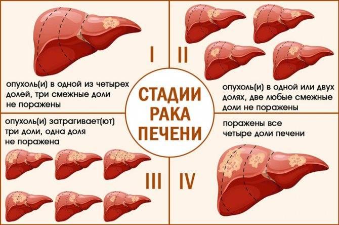 Рак печени 4 стадии