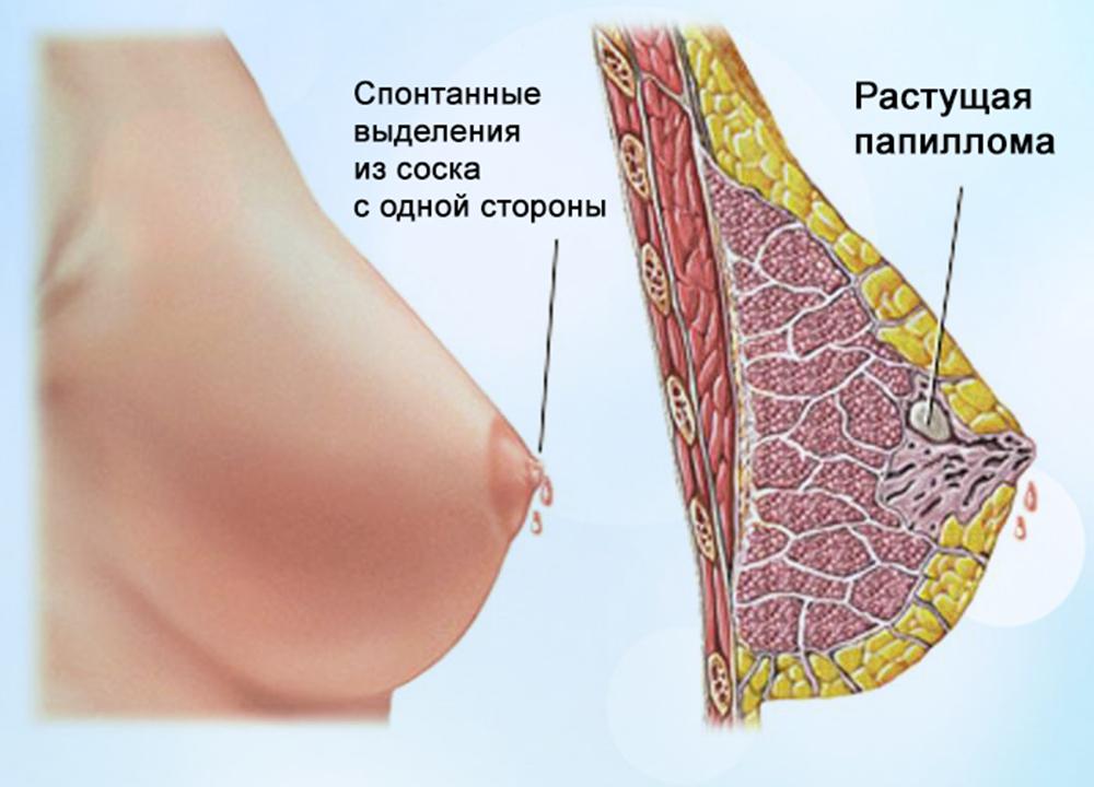 почему болят соски на грудях
