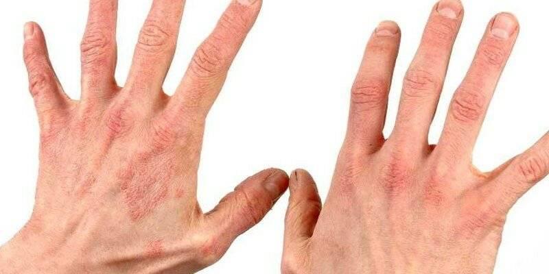 лечение аллергического дерматита у взрослых народными средствами