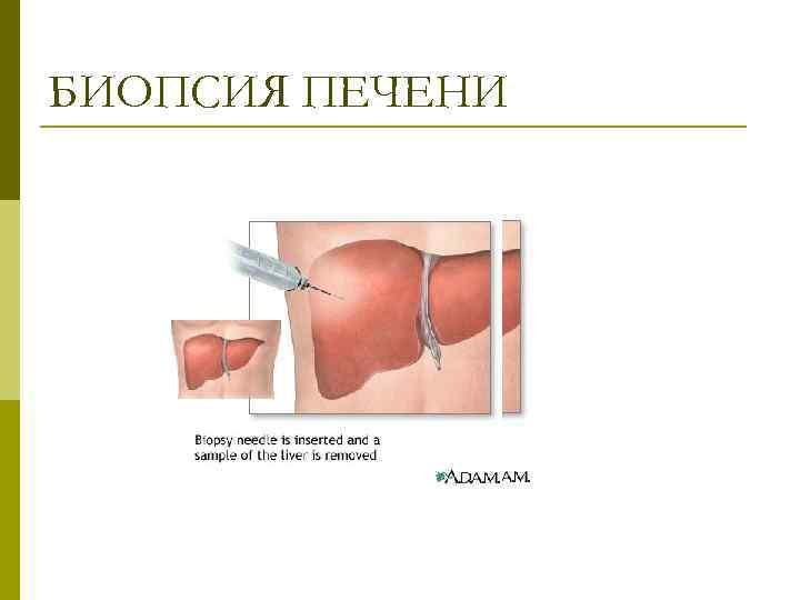 Биопсия печени: виды и особенности методик