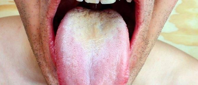 Хламидии живут и во рту (ротовой полости) и на языке