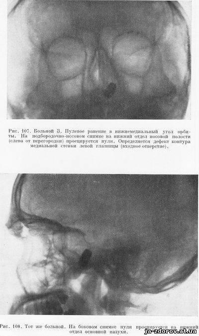 Особенности пневматизации носовых пазух и что это такое