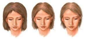 щитовидная железа и волосы