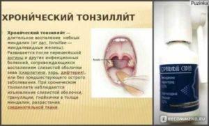 Длительная субфебрильная температура от хронического тонзилита - вопрос лору - 03 онлайн
