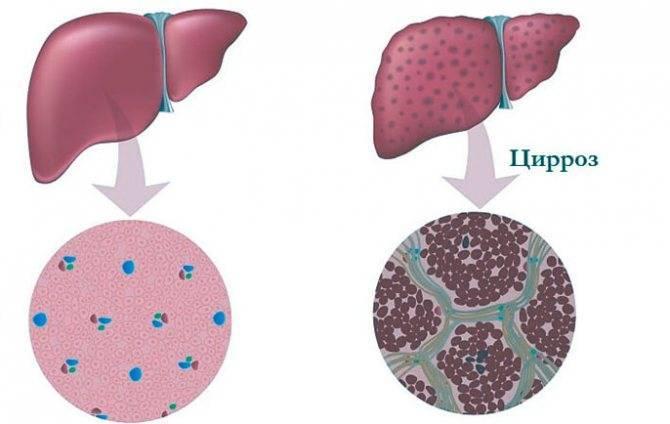 цирроз печени 4 стадии