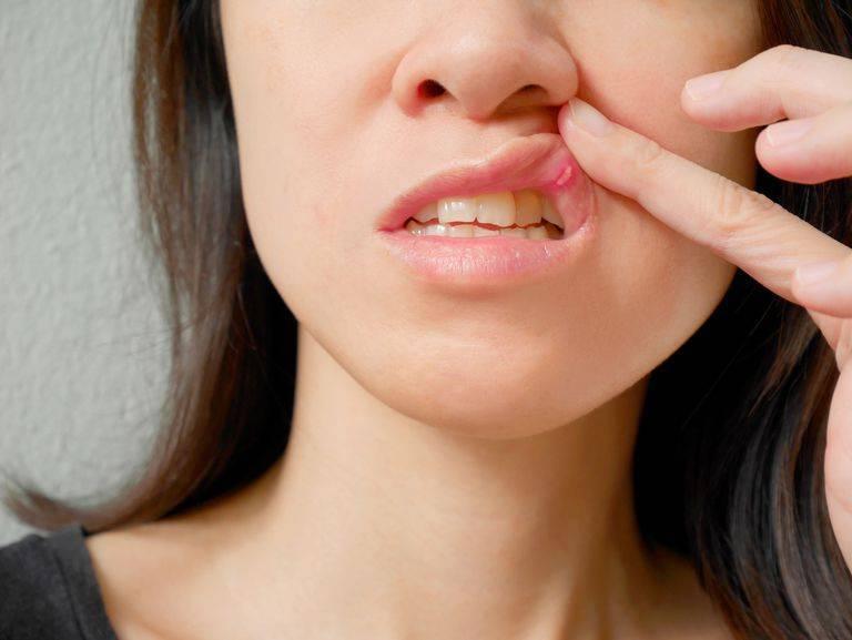 Герпес на внутренней стороне губы как лечить