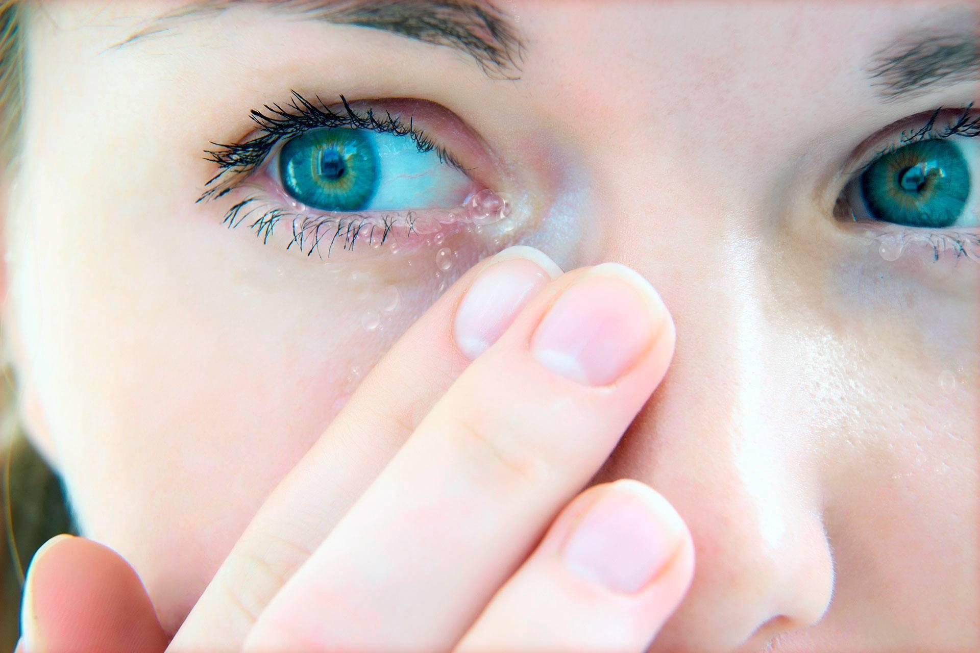Глаза болят и слезятся