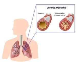 Остаточный кашель после бронхита:есть ли повод для беспокойства?