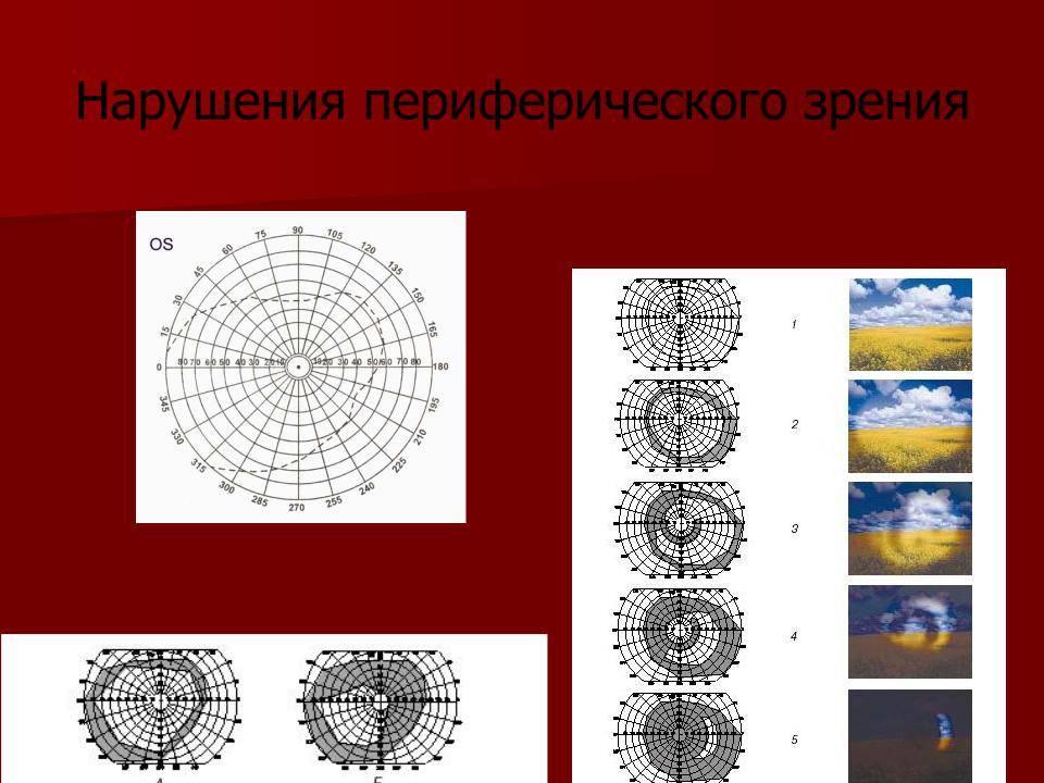 развитие периферийного зрения