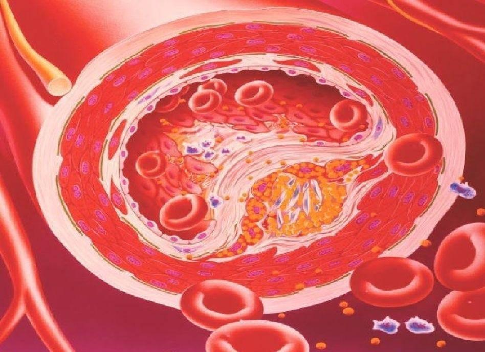 атеросклероз аорты и атеросклеротический кардиосклероз