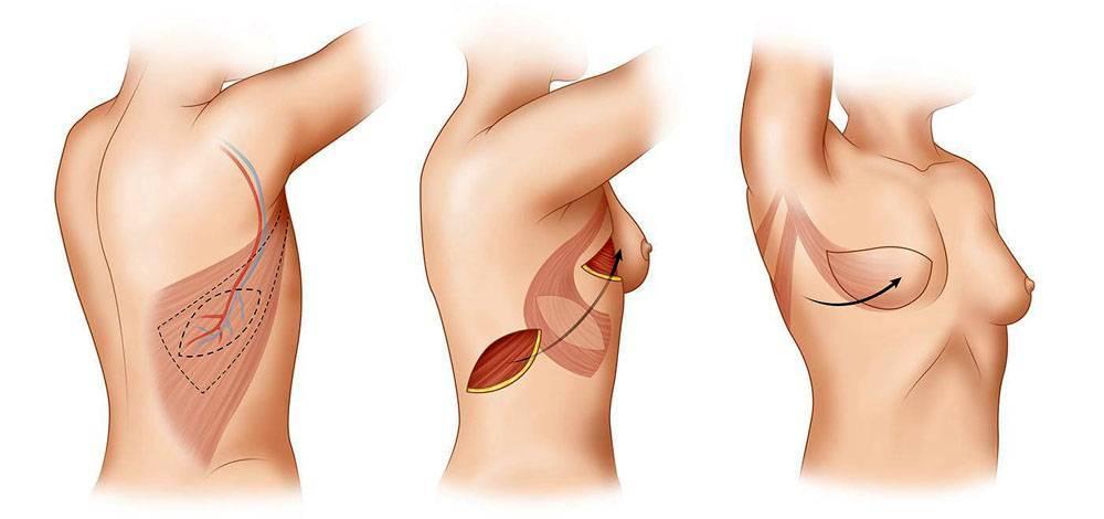 рожистое воспаление руки после мастэктомии лечение