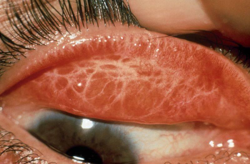 Хламидийный конъюнктивит - симптомы болезни, профилактика и лечение хламидийного конъюнктивита, причины заболевания и его диагностика на eurolab