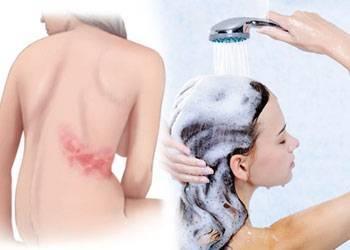Можно ли мыться при герпесе на теле? советы врачей