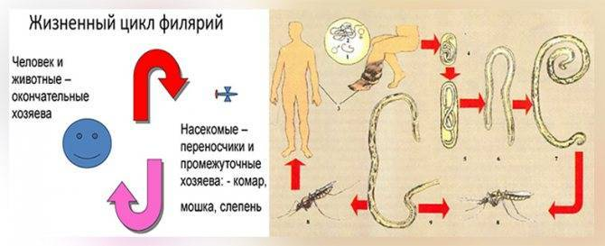 Лимфатический филяриоз