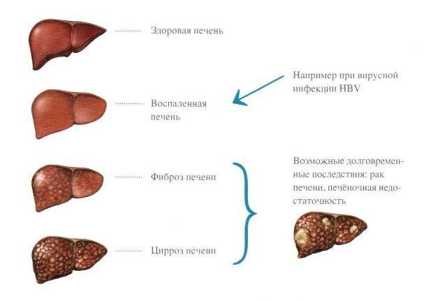 симптомы хронического гепатита б