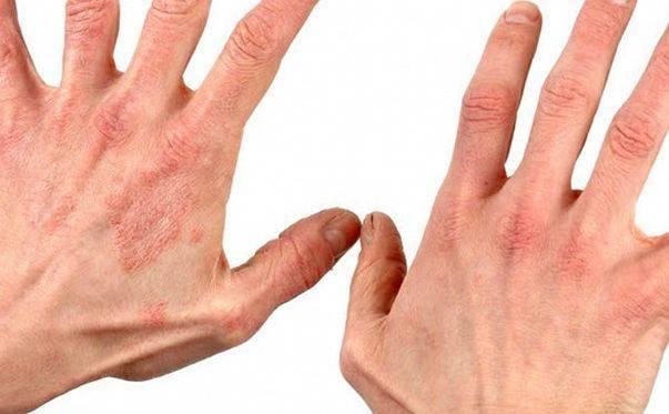 нервный дерматит симптомы и лечение