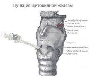 Пункция узла щитовидной железы последствия: железы, как выглядит, лекарственные препараты, обострение, последствия, пункция, симптомы и лечение, узла, щитовидной
