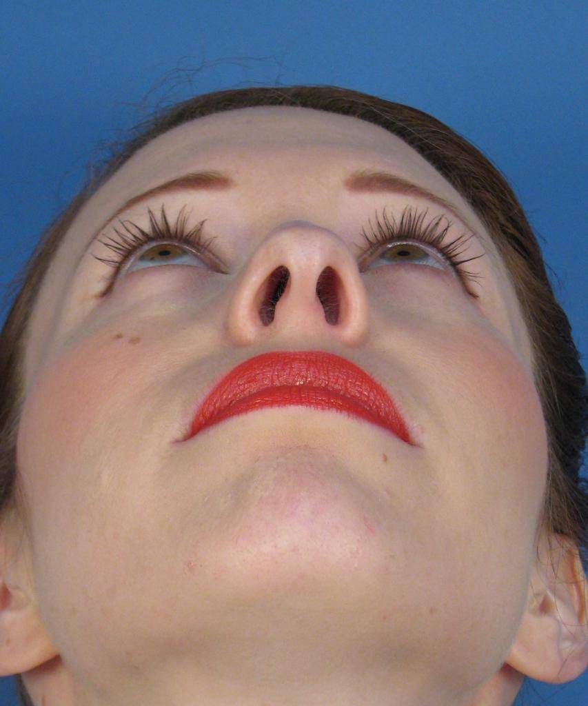 Чем опасно искривление перегородки носа, причины, лечение и реабилитация