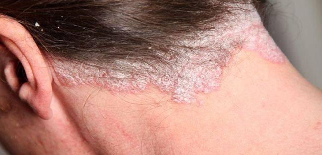 себорейный псориаз симптомы