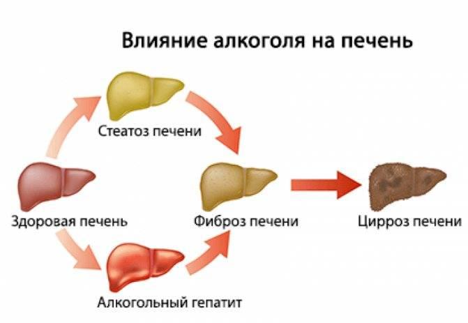 лечение стеатоза печени