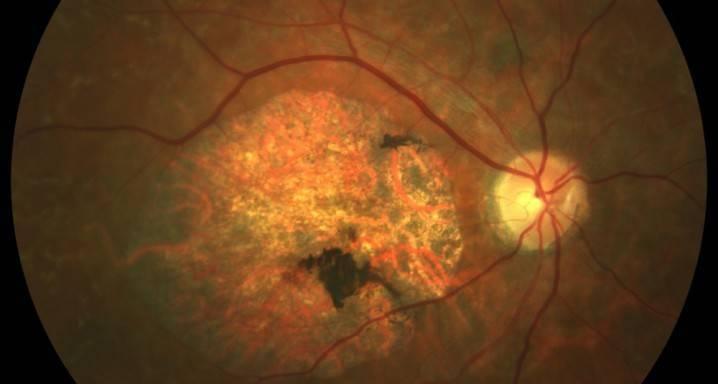 Причины развития, современные методы диагностики и лечения ретинитов