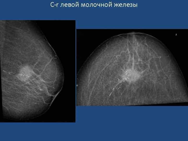 Узловое образование левой молочной железы лечение