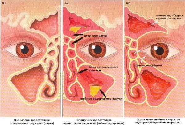 Почему не дышит нос: что делать? методы лечения