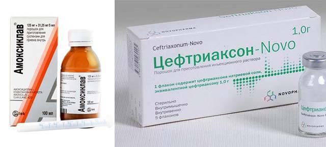 Антибиотики при отите у детей в таблетках, капли в уши, уколы. можно ли вылечить отит без антибиотиков ребенку?