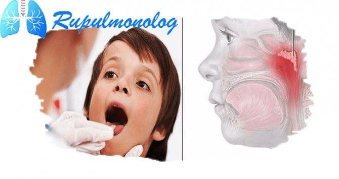 красное горло у грудничка лечение комаровский