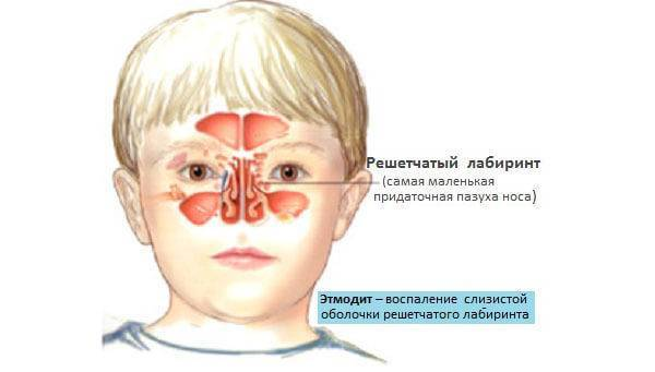 Лечение этмоидита, способы, народные средства