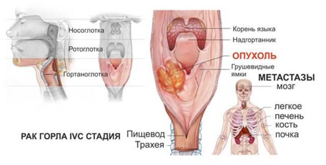 Симптомы и проявления рака горла у женщин и мужчин
