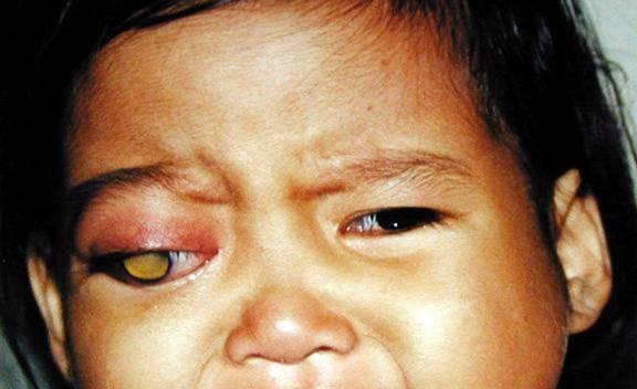 онкология глазного яблока прогноз