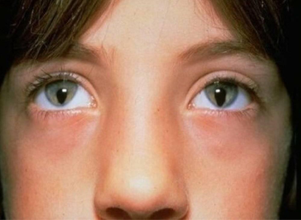 Что такое колобома радужки и способы лечения