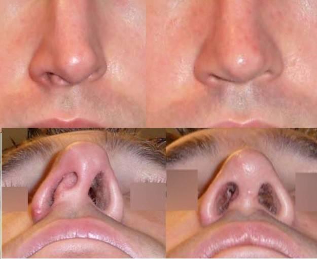 как выровнять нос без операции