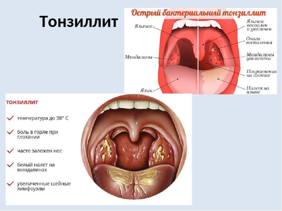 ангина как называется по медицински