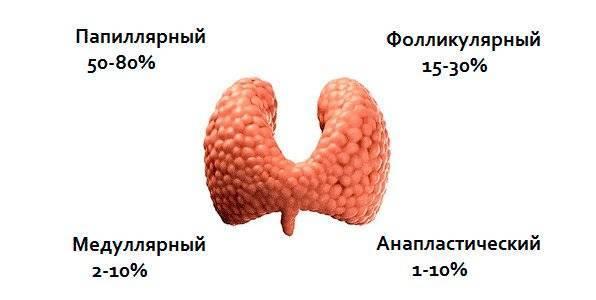 Папиллярная карцинома щитовидной железы (рак щитовидной) – симптомы, лечение, прогноз