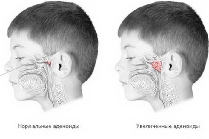 Причины аденоидита у детей. лечение и профилактика патологии