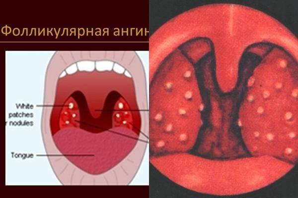 фолликулярная ангина лечение у взрослых
