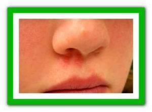 Герпес в носу у ребенка: симптомы, причины, как и чем лечить (фото, видео)
