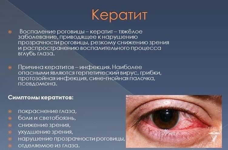 глазные капли при кератите