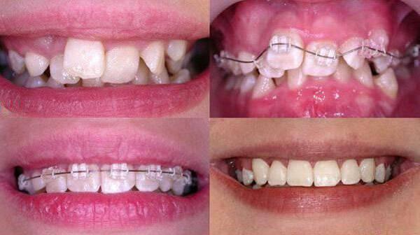 брекеты портят эмаль зубов