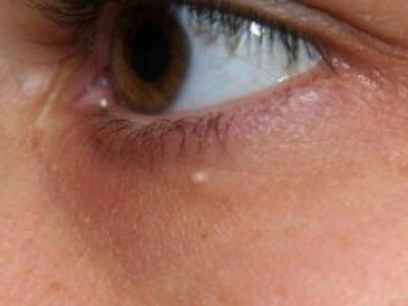 жировик под глазом как избавиться