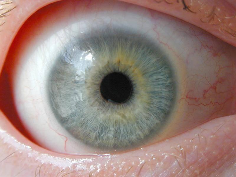 паразиты в глазах лечение