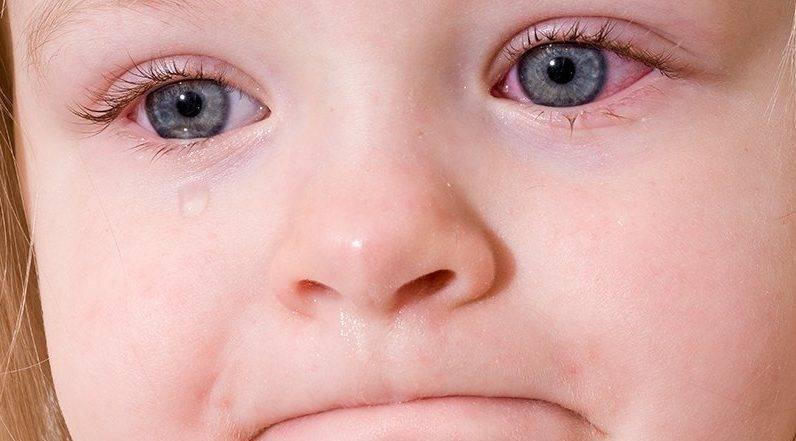 красные сосуды в глазах у грудничка